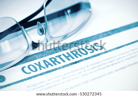 Coxarthrosis - Medicine Concept with Blurred Text and Spectacles on Blue Background. Selective Focus. 3D Rendering.