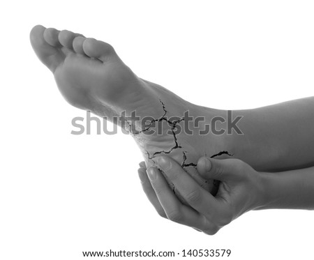 Cracked heel - stock photo