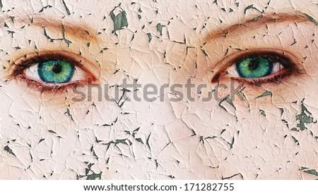 Cracked skin - stock photo