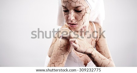 Cracked skin treatment. Cosmetic concept - stock photo