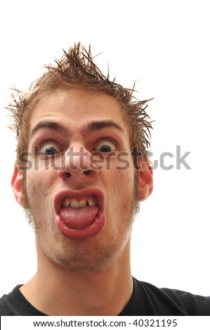 Crazy wacky ugly man with crooked teeth and acne and veins above his eyes - stock photo