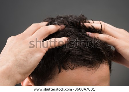 Cropped image of man suffering from dandruff against gray background - stock photo