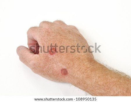 Cryotherapy treatment to remove precancerous cells from a hand - stock photo