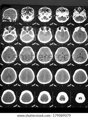 CT brain of a 31 years old man who has suddenly unconscious and left hemi-paralysis; clinical diagnosis is cerebral thrombosis, but NAD on CT. Usually CT cannot detect abnormality in the early period.