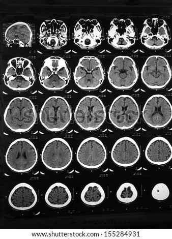 CT brain of a 48 years old man with head injury and confusion: demonstrated depressed skull fracture at left temporal bone, and dilated perivascular or lacunar infarction at right frontal lobe.  - stock photo