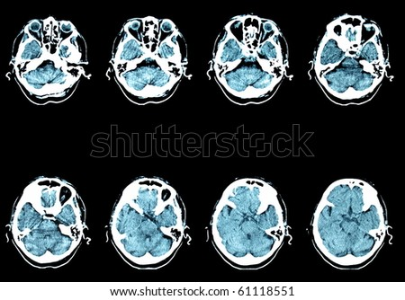 CT computer tomography Brain - stock photo