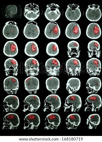 CT of the brain with hemorrhagic stroke. Professional training information. Red is highlighted the affected area - stock photo