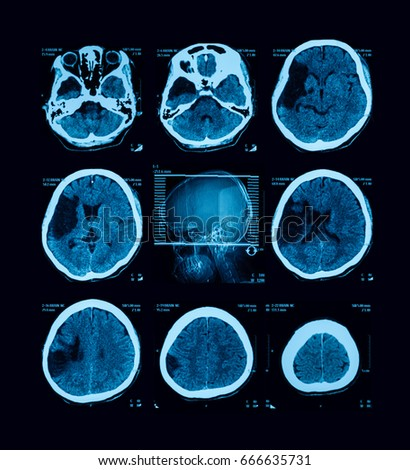 CT scan ( Computed tomography) of the bairn, case of cerebrovascular accident (CVA) (left hemiparesis)