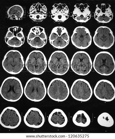 CT scan of brain in a 62 years old woman with vertigo, demonstrated brain atrophy compatible with age and physiologic calcification.