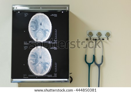 CT scan of brain on the x-ray film illuminators on the wall with stethoscopes - stock photo