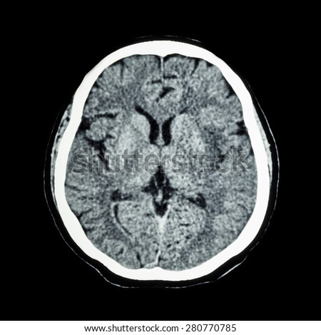 Ct scan brain showing intracerebral haemorrhage stock photo ct scan of brain show normal human s brain cat scan ccuart Images
