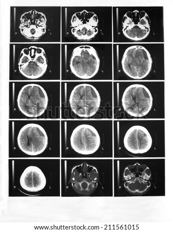 CT scan of brain with contrast enhancement in a 34 years old man:  Demonstrated chronic subdural hematoma at left fronto-temporo-parietal lobes, 25 mm thickness, and ventricle shift 17 mm to the right - stock photo