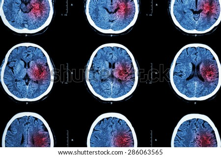 CT scan of brain with red area ( Imaging for hemorrhagic stroke or Ischemic stroke ( infarction ) concept ) - stock photo