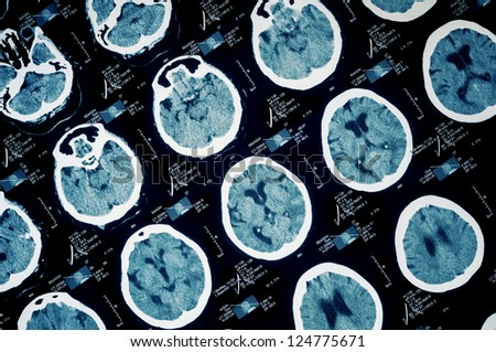 CT scan of human head-brain area - stock photo