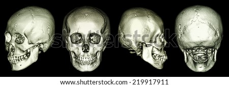 CT scan of human skull and 3D  - stock photo