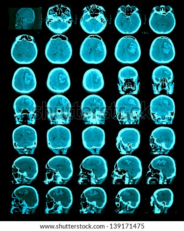 CT scan of the brain. Hemorrhagic stroke. Information for professionals. - stock photo