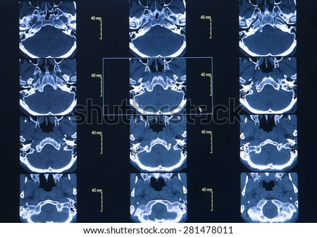 CT scan of thoracic segment. science background - stock photo