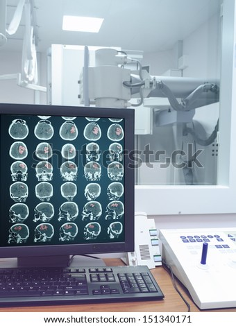 CT scan on the monitor in the X-ray lab - stock photo