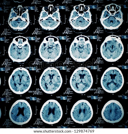 CT scan pattern background. - stock photo