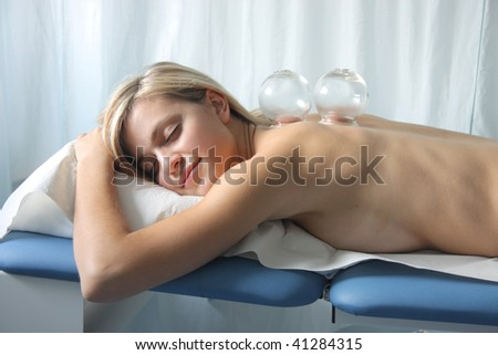 cupping therapy - stock photo