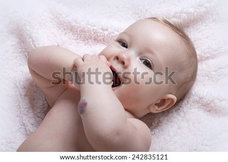 Cute baby girl with hemangioma on her arm - stock photo