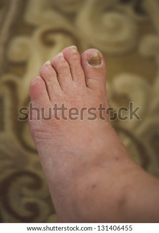 damaged nails because of fungus and athlete's foot - stock photo