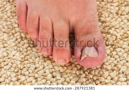 Damaged toenail - stock photo