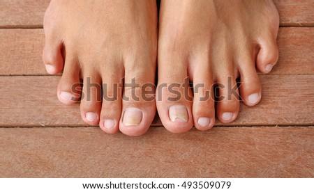 Hư hỏng móng chân, móng tay bị phá vỡ