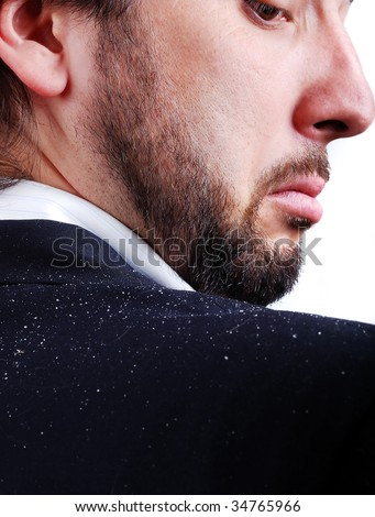 Dandruff issue on man's sholder - stock photo