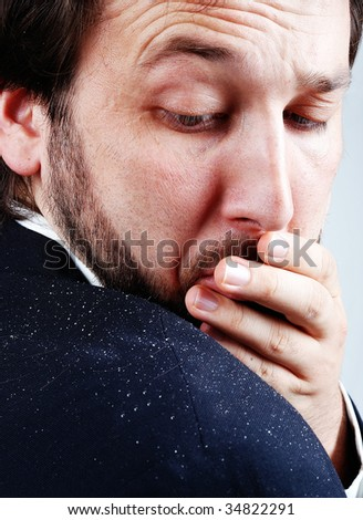 Dandruff issue on man's shoulder - stock photo