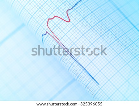 Danger sign on the patient's ECG, close-up - stock photo