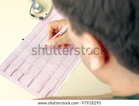 Dark hair doctor makes notes on the ECG. Photo in which the doctor analyzes ECG. - stock photo