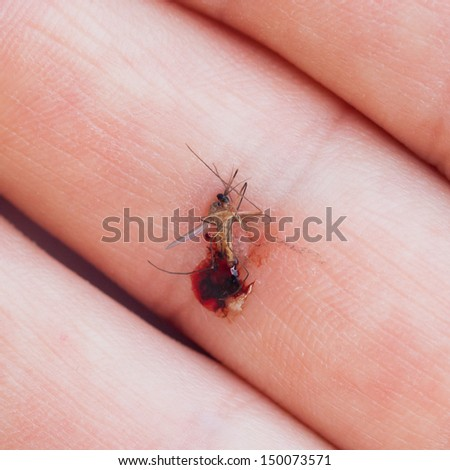 Dead mosquito with blood crushed in a hand - stock photo