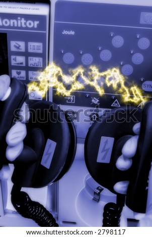 defibrillator with electrical discharge in emergency room - stock photo