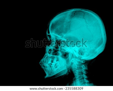 deformation of the jaw bone, X-ray - stock photo