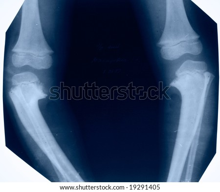deformed lower extremity in blue color - stock photo
