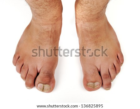 Big Toe Stock Images, Royalty-Free Images & Vectors ...