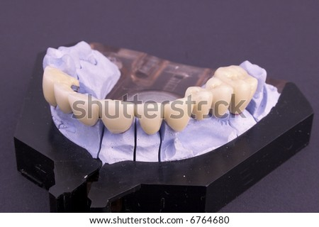 Dental bridge at laboratory - object - stock photo