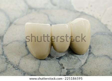 dental bridge on ammonite - stock photo