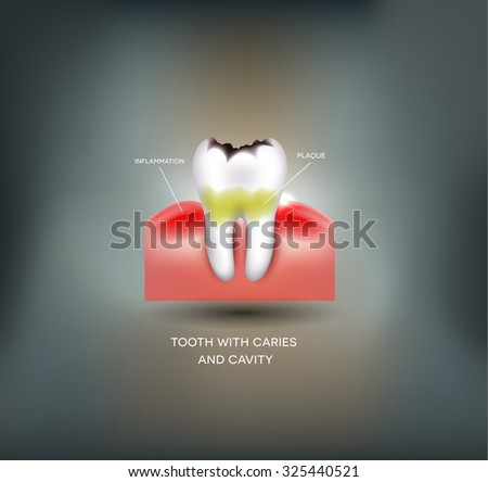 Dental caries and cavity, dental plaque with inflammation. Beautiful abstract mesh background - stock photo