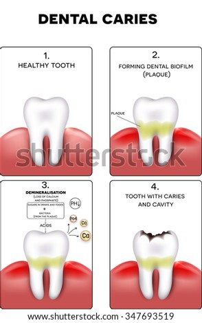 Dental caries formation, dental plaque, loss of calcium, phosphate and finally caries and cavity - stock photo