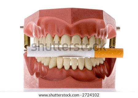 Dental casting biting a cigarette isolated in white background - stock photo