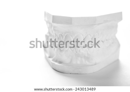 Dental casting gypsum model plaster cast stomatologic human jaws prothetic laboratory, technical shots - stock photo