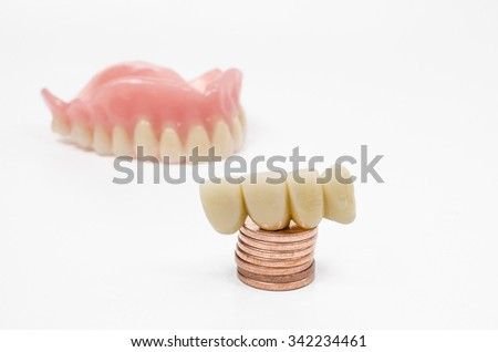 dental costs - stock photo
