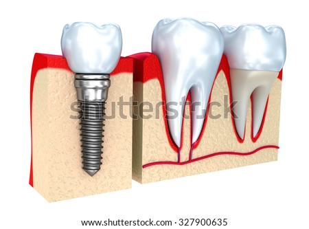 Dental crown , implant and teeth , 3d image . - stock photo