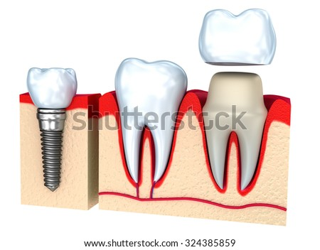 Dental crown installation process, isolated on white - stock photo