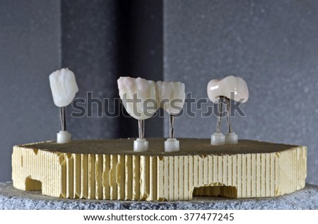 Dental crowns ready for furnace - stock photo