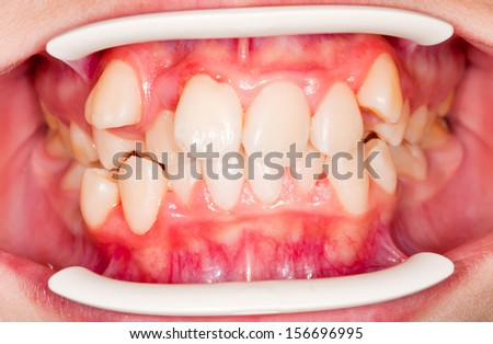 Dental displacement, which needs orthodontic treatment - stock photo