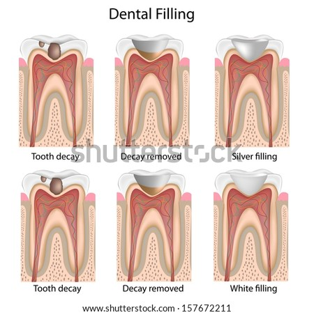 Dental fillings - stock photo