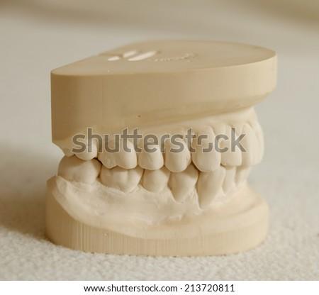 Dental gypsum model mould of teeth in plaster - stock photo